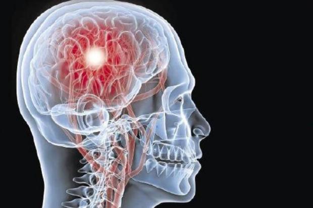 Estudo revisa dose de medicamento e consegue reduzir mortalidade por AVC Morguefile/Reprodução