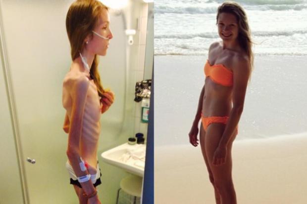 Jovem que chegou a pesar 30kg sobreviveu à anorexia e agora faz campanha contra a doença Instagram / Reprodução/Reprodução