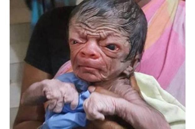 """Menino com rosto de velho nasce em Bangladesh e é comparado a """"Benjamin Button"""" Reprodução / Twitter/Twitter"""