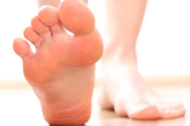 Calcanhares rachados? Confira dicas caseiras de tratamento  Sociedade Brasileira de Ortopedia/Divulgação