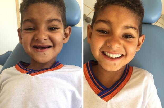 Dentista realiza sonho de menino de seis anos: ter dentes iguais aos dos coleguinhas Reprodução / Facebook/Facebook