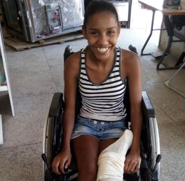 Após 14 anos de espera, jovem passa por cirurgia ortopédica e vai realizar o sonho de calçar chinelos Arquivo pessoal/Leitor/DG