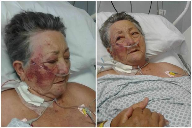 Idosa agredida por enfermeiro dentro de UTI morre em São Paulo Hedilaine Aparecida Garcia / Reprodução / Facebook/Reprodução / Facebook