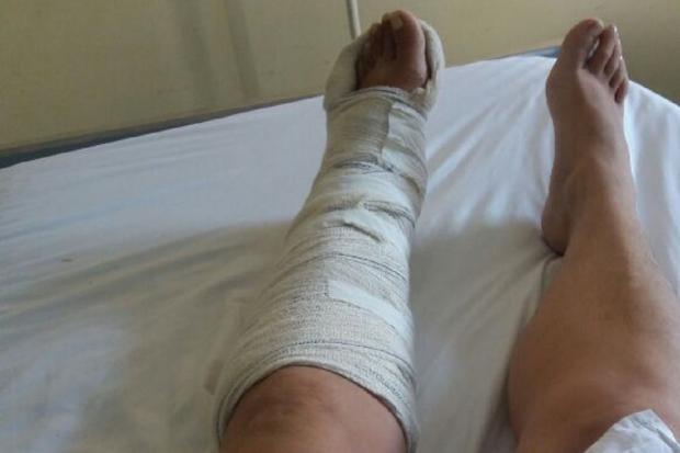 Moradora de Viamão espera por cirurgia no tornozelo há dois meses Arquivo Pessoal / Leitor/DG/Leitor/DG