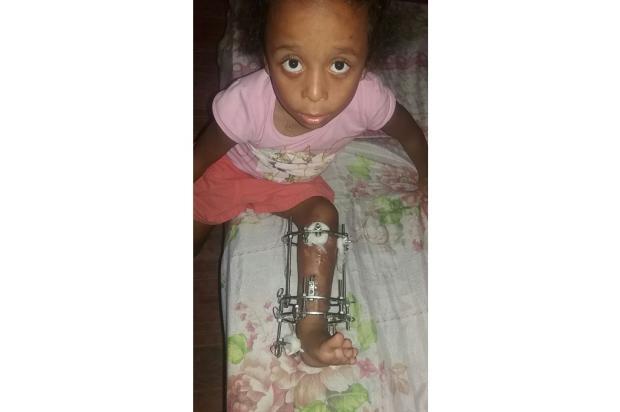 Menina aguarda por remoção de fixador externo em Viamão Arquivo Pessoal / Leitor/DG/Leitor/DG