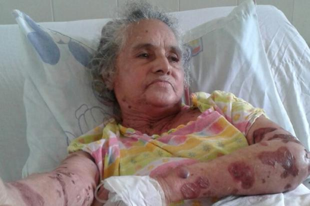Falta de especialista e espera por leito causam sofrimento para idosa em Alvorada Arquivo Pessoal / Leitor/DG/Leitor/DG