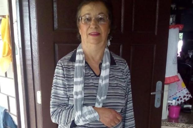 Com braço fraturado, idosa aguarda por cirurgia desde 2014, em Gravataí Arquivo Pessoal / Leitor/DG/Leitor/DG