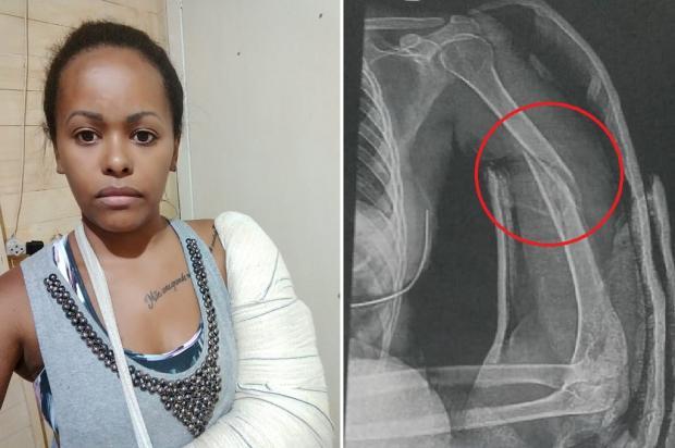 Com braço quebrado, moradora de São Leopoldo espera consulta há quatro meses Arquivo Pessoal / Leitor/DG/Leitor/DG