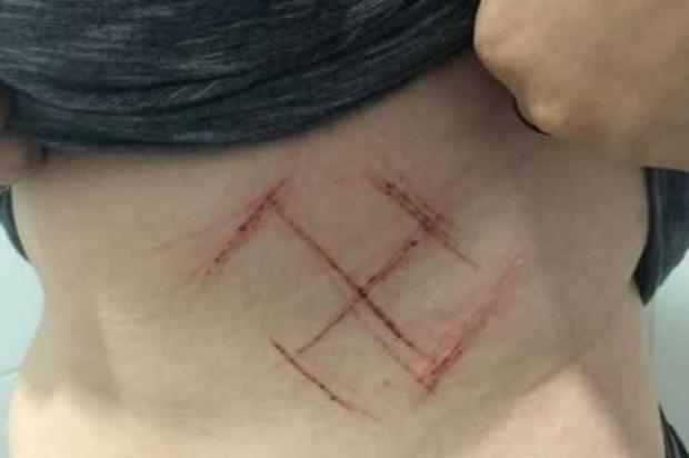 Defesa de jovem que teve corpo marcado contesta automutilação e reafirma que ela foi atacada Facebook/Reprodução