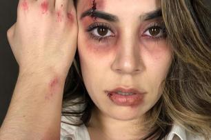 Naiara Azevedo publica foto com olho roxo e confunde fãs Reprodução/Instagram