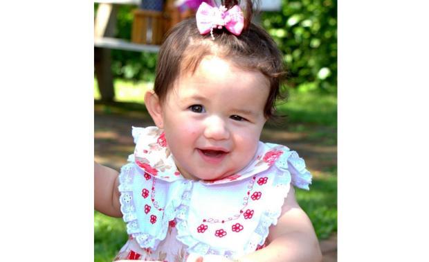 Menina de São Leopoldo precisa de ajuda para realizar uma reparação de deformidade do crânio LeitorDG / Arquivo Pessoal/Arquivo Pessoal