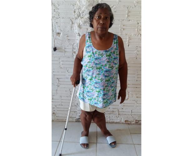 Idosa de Alvorada espera há oito anos por cirurgia ortopédica LeitorDG / Arquivo Pessoal/Arquivo Pessoal