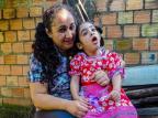 Falta de leite em pó especial nas farmácias do Estado afeta crianças com paralisia Arquivo pessoal/Arquivo pessoal