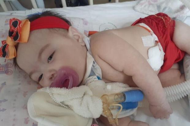 Família busca ajuda para menina Heloíse, hospitalizada desde novembro Arquivo Pessoal / Arquivo Pessoal/Arquivo Pessoal